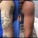 Tattoo Removal Facilities