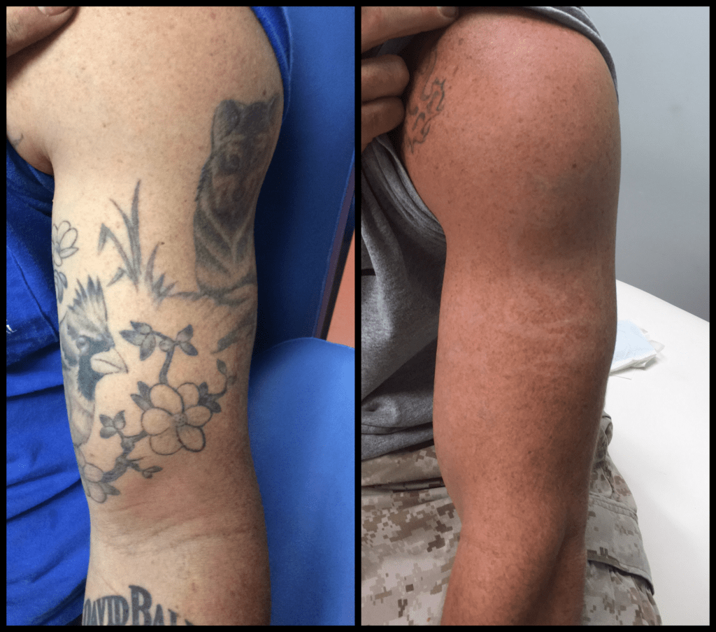 Tattoo Removal Facilities That Give Service Guarantee